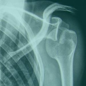 Chirurgie de l'instabilité de l'épaule (luxation récidiventes de l'épaule)